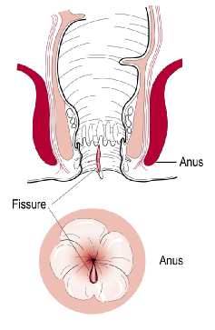 Anal Fissure - Causes, Symptoms, Treatment | Glasgow Colorectal Centre